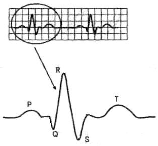 Биология 9 олимпиада кардиограмма